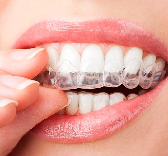 Отбелить керамические зубы в домашних условиях